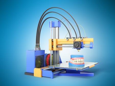 odontology: The concept of dental prosthetics Denture to 3D printers 3d render on a blue background