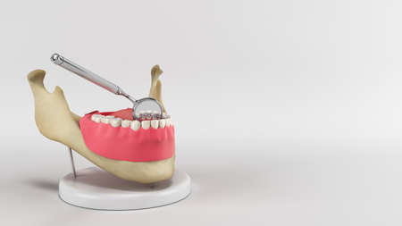 Lingual braces system on a demonstration denture 3d render image