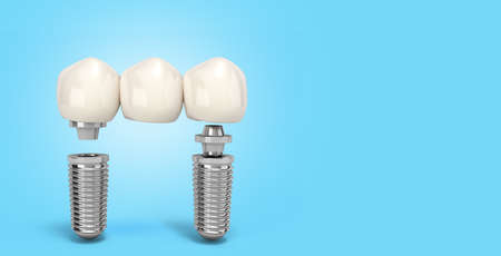 Tooth human multitooth implant Dental concept Human teeth or dentures multitooth 3d render on blue gradient