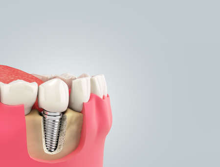 Tooth human single implant Dental concept Human teeth or dentures 3d render on gray gradient Zdjęcie Seryjne