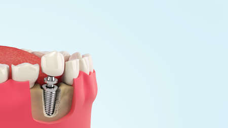 Tooth human single implant Dental concept Human teeth or dentures 3d render on blue gradient