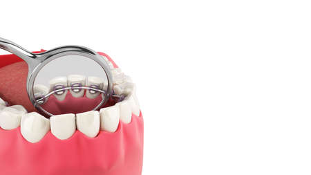 Lingual braces system on a demonstration denture 3d close up on white