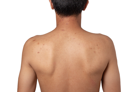 Man with acne,scar spots on the back isolated on white background Stock Photo