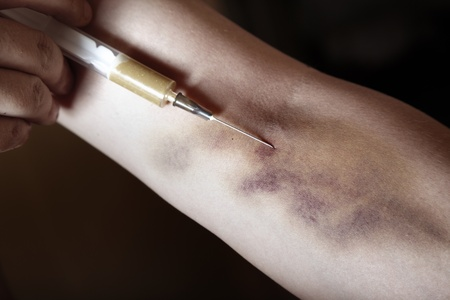 Hand with bruise and heroin syringe. Close-up photo. Natural colors Standard-Bild