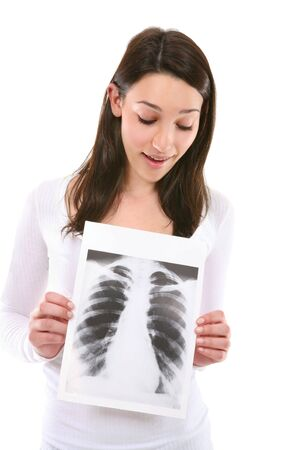 A cute young woman holding an x-ray isolated over white Stock Photo - 6038697