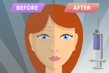 Woman face before after lifting concept banner. Cartoon illustration of woman face before after lifting vector concept banner for web design Vettoriali