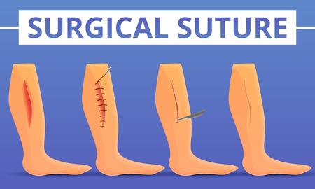 Medical suture concept background. Cartoon illustration of medical suture vector concept background for web design