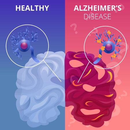 Alzheimer brain banner set. Cartoon illustration of alzheimer brain vector banner set for web design Çizim