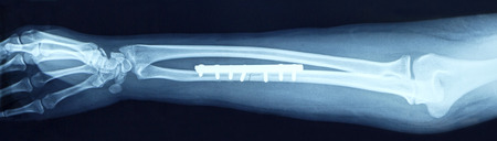 fracture arm: Film x-ray show fracture shaft of arm insert plate and screw for fix arm's bone Stock Photo