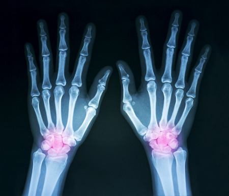Film x-ray both humans hands and wrist arthritis, marking in red color photo
