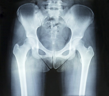 perineum: Film x-ray normal pelvis and both hip Stock Photo