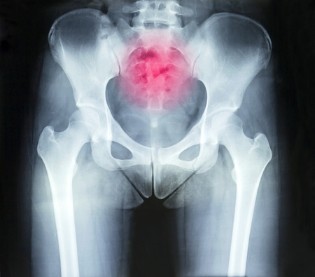 coccyx: Film x-ray pelvis and arthritis coccyx Stock Photo