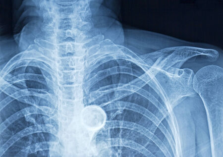 torax: Film x-ray humans chest, rib, spine and trachea