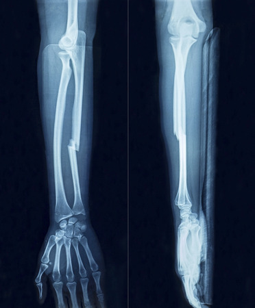 fracture arm: Film x-ray show fracture plate of arm for fix arm's bone Stock Photo