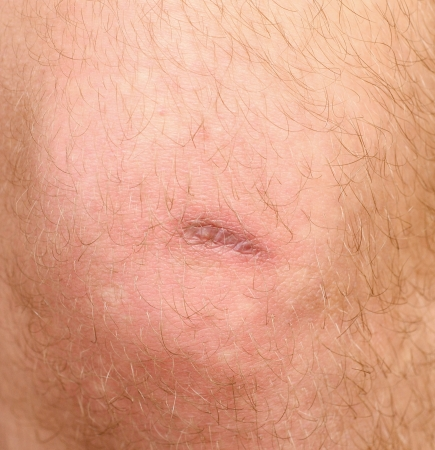 scar on the mans knee photo