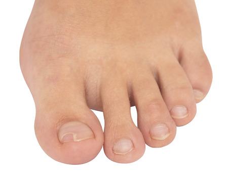 toenail fungus: toenail fungus isolated on white