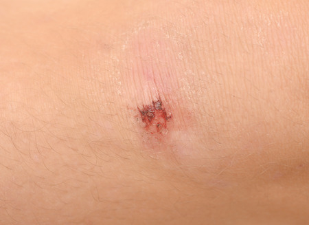 red skinned: Scraped knee of a man Stock Photo