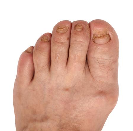 toenail fungus: toenail fungus at the peak of the infection Stock Photo