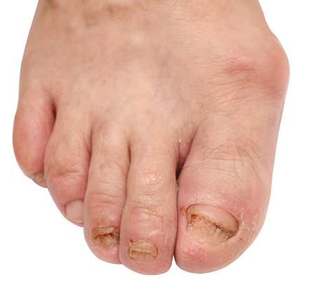 toenail: toenail fungus at the peak of the infection Stock Photo