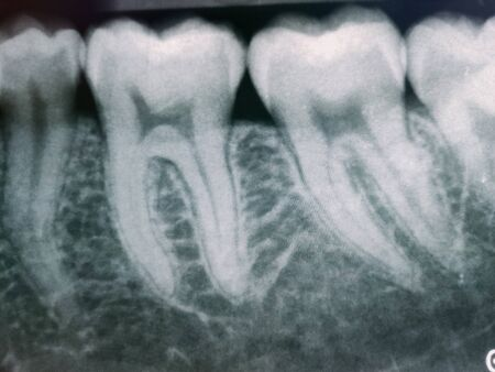 Dental X-ray images of patients coming to the dentist.
