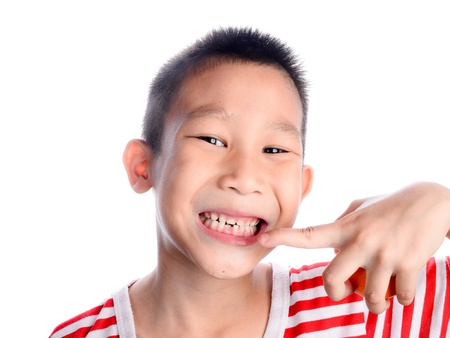 Attractive young boy with missing teeth close up detail