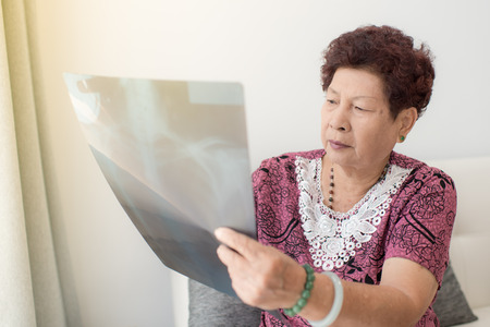 women s health: Asian senior woman looking at x-ray with window light.