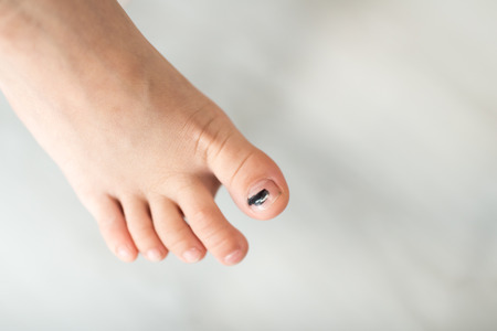 toe: Subungual hematoma blue and black toe nail