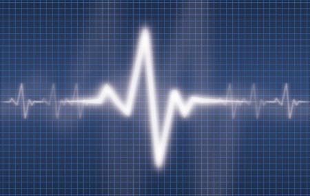 cardioid: Cardiogram