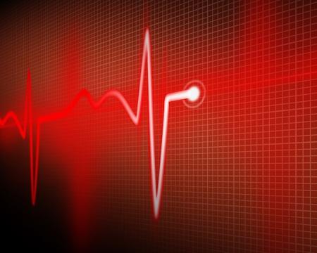 ambulancia: cardiogram Foto de archivo