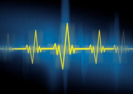 electrocardiogram: Heartbeat, cardiologia Archivio Fotografico