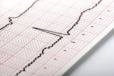 cardioid: cardiograma