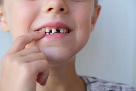 Child and loose tooth. Loss of a milk tooth.