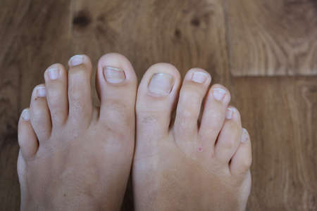 Women's nails without a pedicure. Lack of nutrients. Close-up. Without a face.