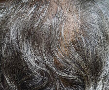 adulthood: Hair loss, balding white man on into adulthood.