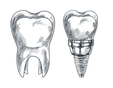 Molar tooth and implant, prothesis, sketch vector