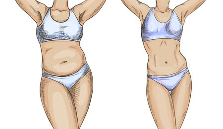 Before after collage with female body, weight loss, hand drawn vector illustration, color sketch  イラスト・ベクター素材