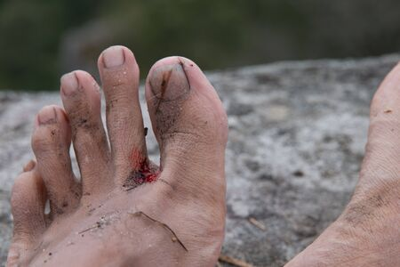 ulcers: Foot ulcers with a blood.