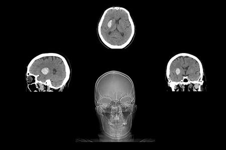 hemorragia: La tomografía computarizada muestra cerebral Hemorragia intracerebral Stoke Foto de archivo