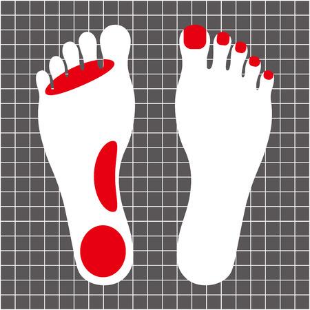 Athlete's foot Stock fotó - 85438918