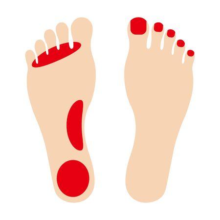 Athletes foot Illusztráció