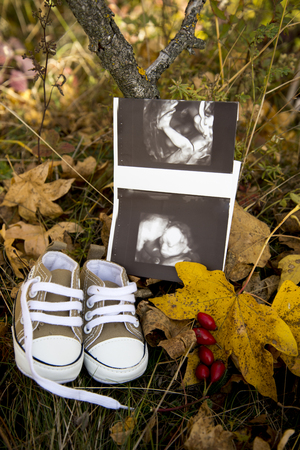 A baby`s ultrasound and baby shoes placed on autumn leaves