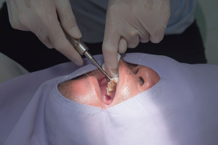 tooth extraction: Caries tooth extraction by the dentist. Dentistry in hospital