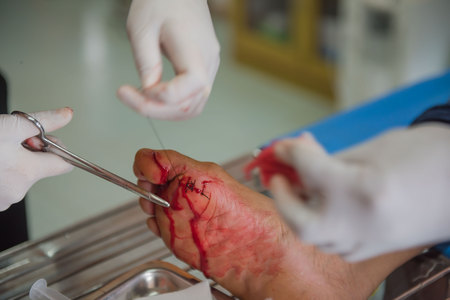 flesh surgery: The wound stitched  in the foot by doctors in the hospital. Accidental wounds . Stock Photo