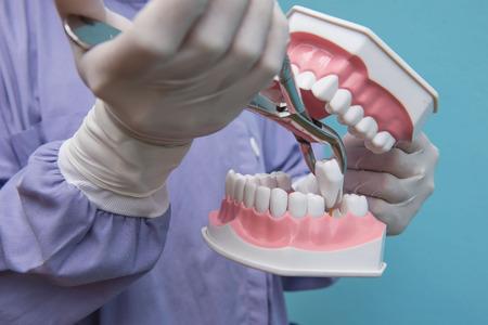 Il modello dentale è usato per dimostrare l'estrazione dei denti da parte dei medici. Sfondo blu.