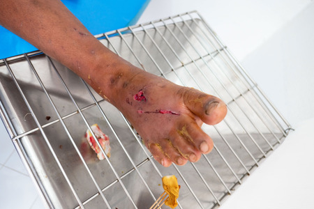 closeup infection wound in the foot of patients .