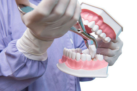 The dental model is used to Demonstration of tooth extraction by doctors. isolated on white background of file with Clipping Path .