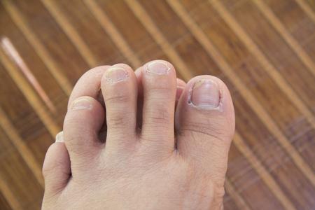 Voeten met ongezonde toenails liggen op een mat