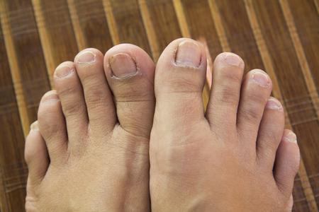 voeten ongezonde teennagels liggen op een mat Stockfoto