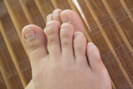 feet with unhealthy toenails lay on a mat Stock Photo