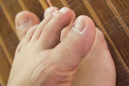 feet with unhealthy toenails lay on a mat Stock Photo